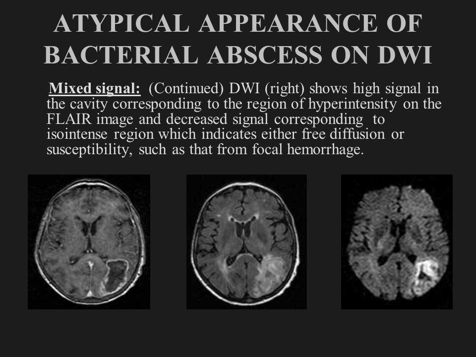 ATYPICAL APPEARANCE OF BACTERIAL ABSCESS ON DWI Mixed signal: (Continued) DWI (right) shows high signal in the cavity corresponding to the region of h