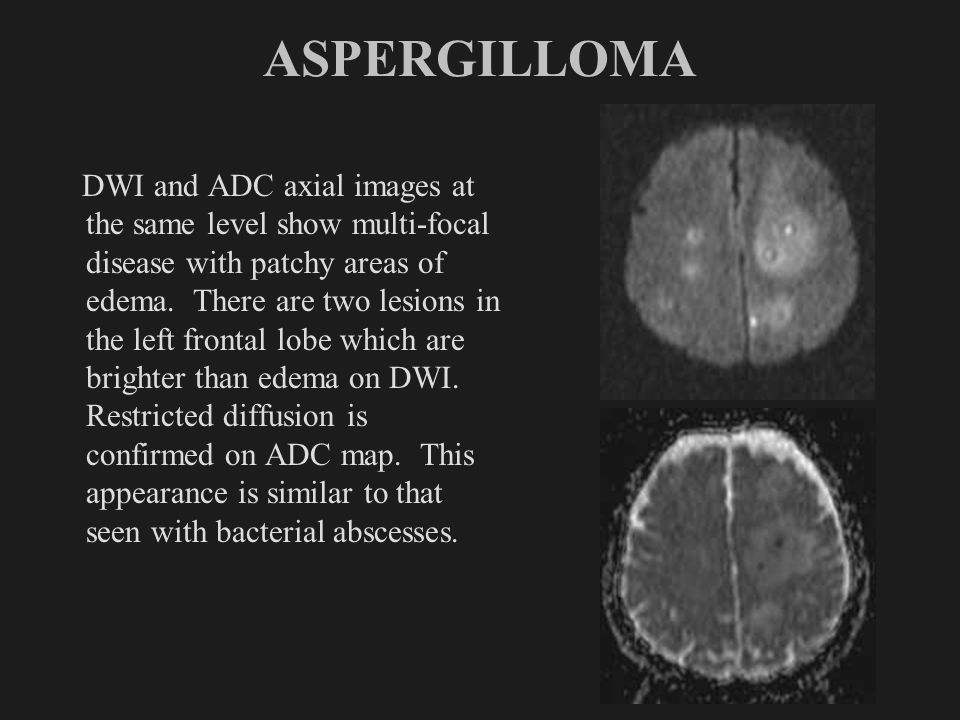ASPERGILLOMA DWI and ADC axial images at the same level show multi-focal disease with patchy areas of edema. There are two lesions in the left frontal
