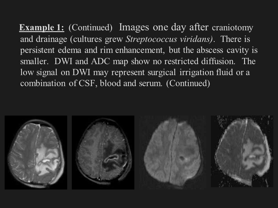Example 1: (Continued) Images one day after craniotomy and drainage (cultures grew Streptococcus viridans). There is persistent edema and rim enhancem