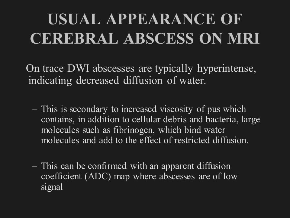 USUAL APPEARANCE OF CEREBRAL ABSCESS ON MRI Post-Gd T1WI: Abscess in the right thalamus shows low signal intensity within its cavity and an enhancing rim.
