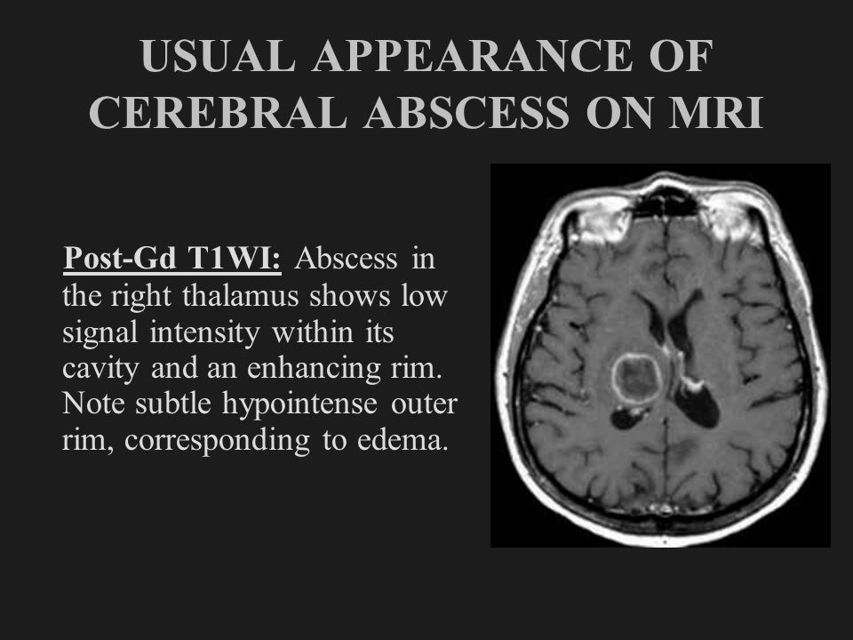 USUAL APPEARANCE OF CEREBRAL ABSCESS ON MRI Post-Gd T1WI: Abscess in the right thalamus shows low signal intensity within its cavity and an enhancing