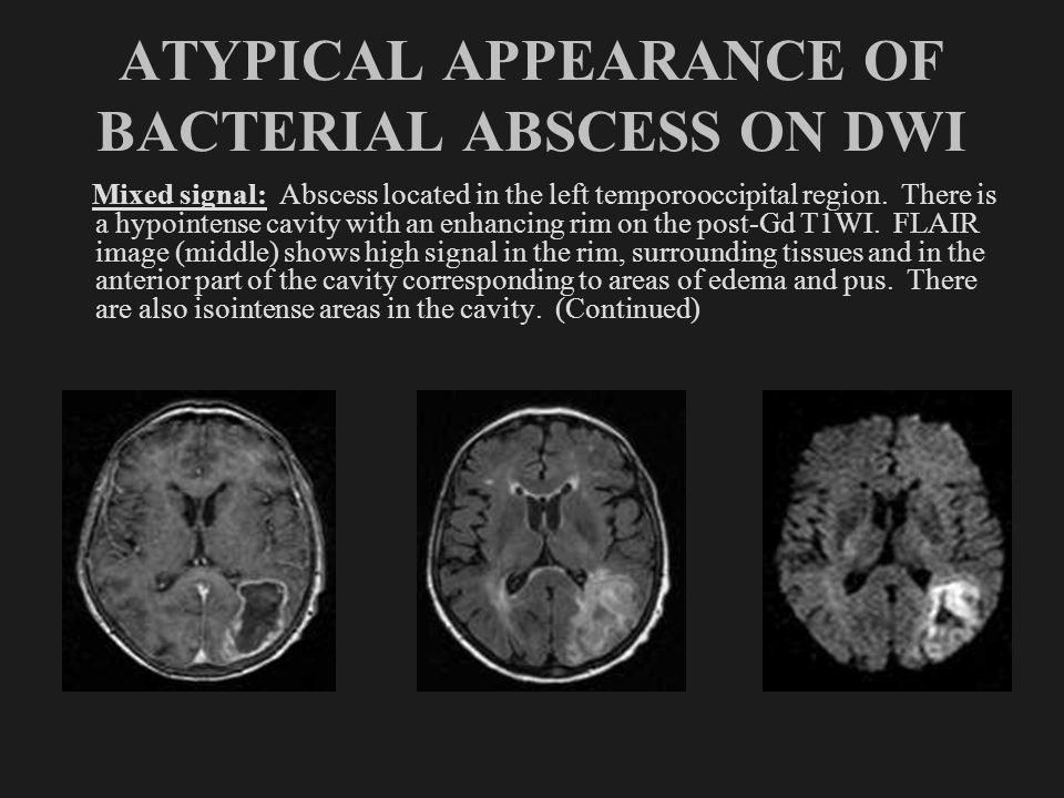 ATYPICAL APPEARANCE OF BACTERIAL ABSCESS ON DWI Mixed signal: Abscess located in the left temporooccipital region. There is a hypointense cavity with