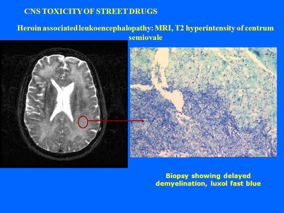 CNS TOXICITY OF STREET DRUGS Heroin associated leukoencephalopathy: MRI, T2 hyperintensity of centrum semiovale Biopsy showing delayed demyelination, luxol fast blue