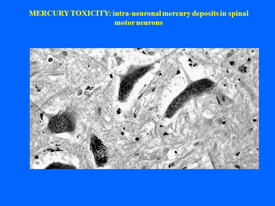 MERCURY TOXICITY: intra-neuronal mercury deposits in spinal motor neurons