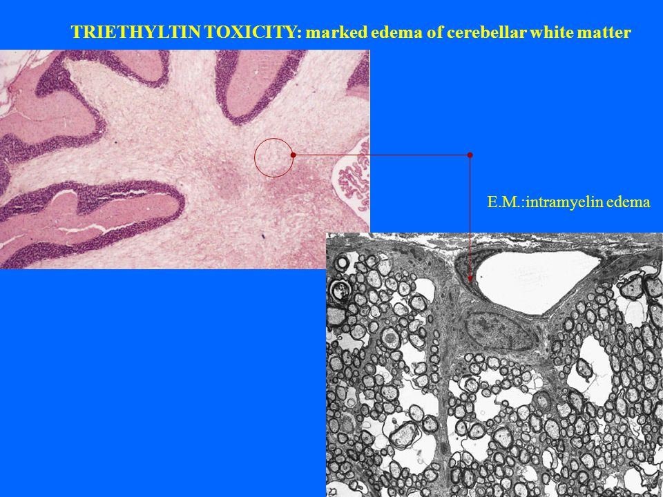 TRIETHYLTIN TOXICITY: marked edema of cerebellar white matter E.M.:intramyelin edema
