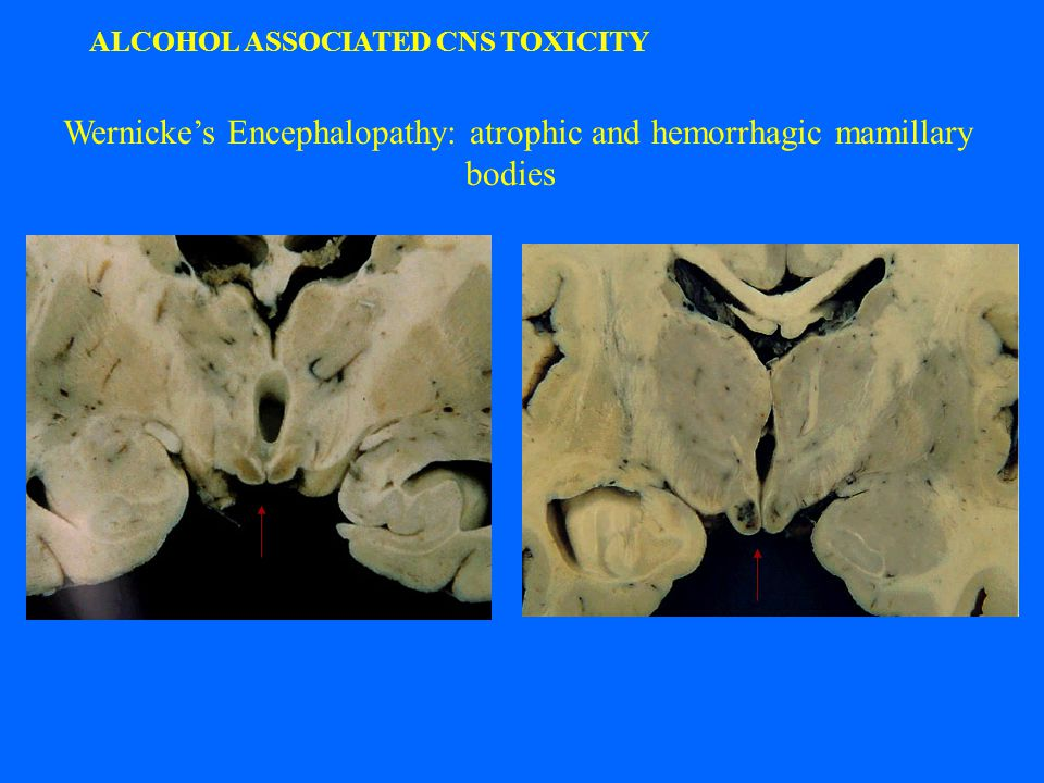 ALCOHOL ASSOCIATED CNS TOXICITY Wernicke's Encephalopathy: atrophic and hemorrhagic mamillary bodies