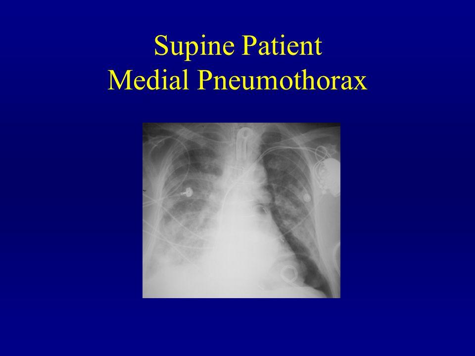 Supine Patient Medial Pneumothorax