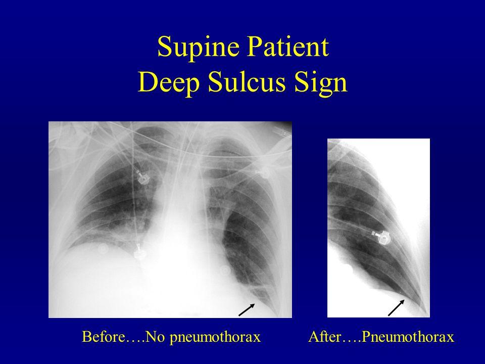 Supine Patient Deep Sulcus Sign Before….No pneumothorax After….Pneumothorax