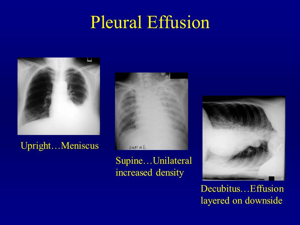 Upright…Meniscus Decubitus…Effusion layered on downside Supine…Unilateral increased density