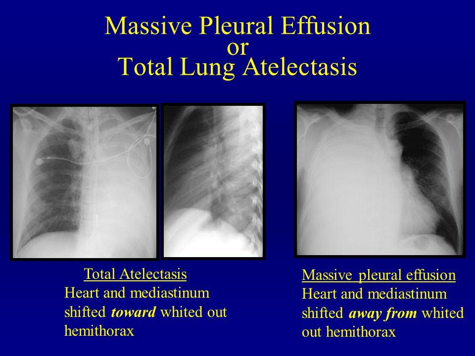 Massive Pleural Effusion or Total Lung Atelectasis Total Atelectasis Heart and mediastinum shifted toward whited out hemithorax Massive pleural effusi