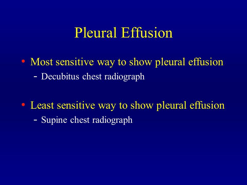 Pleural Effusion Most sensitive way to show pleural effusion - Decubitus chest radiograph Least sensitive way to show pleural effusion - Supine chest