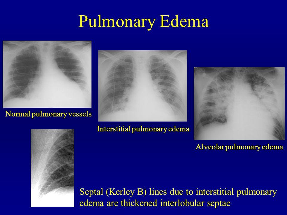 Pulmonary Edema Normal pulmonary vessels Interstitial pulmonary edema Alveolar pulmonary edema Septal (Kerley B) lines due to interstitial pulmonary e