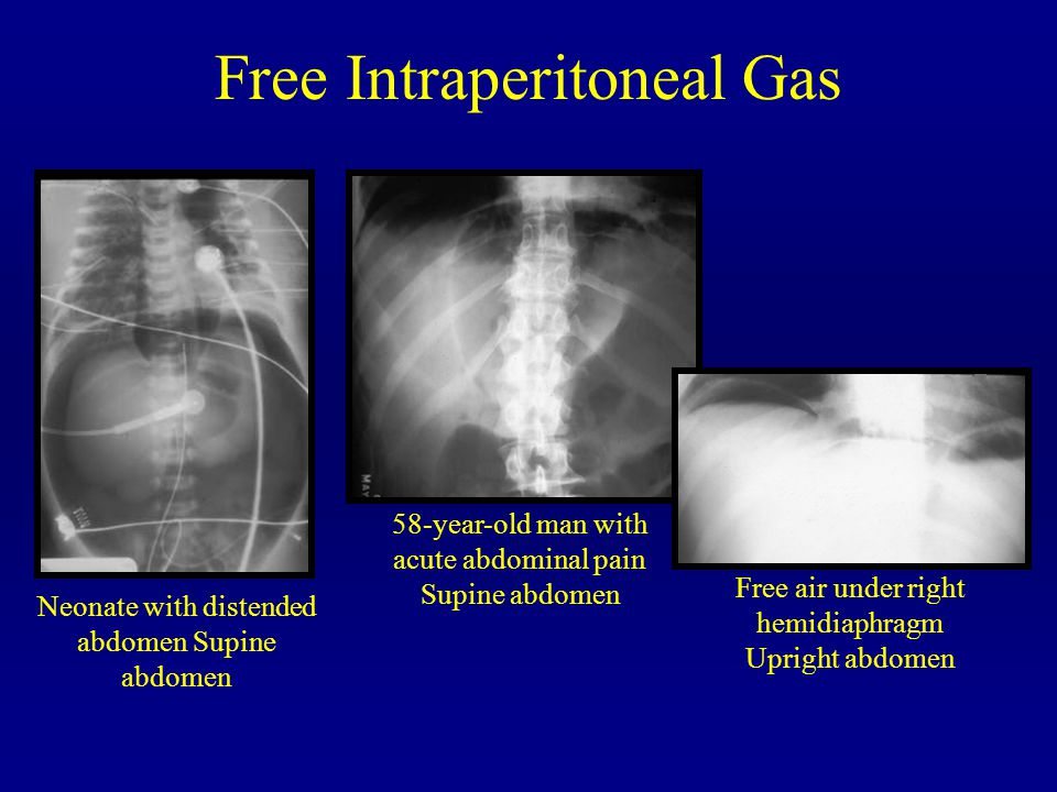 Free Intraperitoneal Gas Neonate with distended abdomen Supine abdomen 58-year-old man with acute abdominal pain Supine abdomen Free air under right h