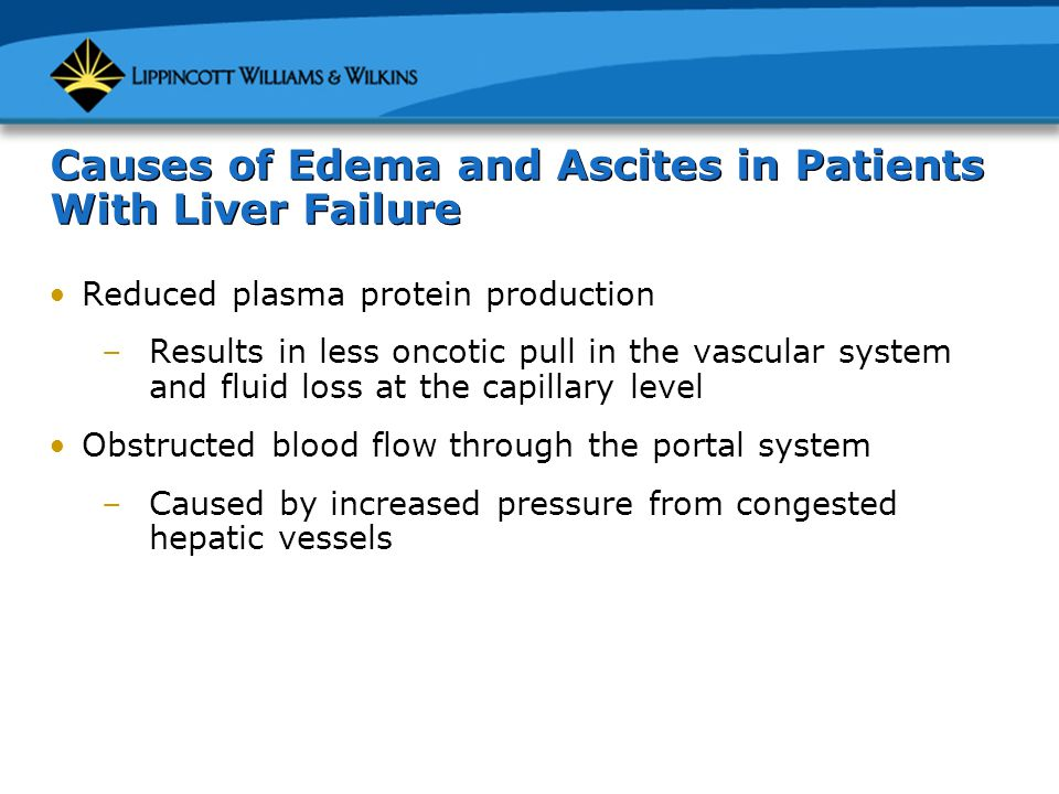Causes of Edema and Ascites in Patients With Liver Failure Reduced plasma protein production –Results in less oncotic pull in the vascular system and