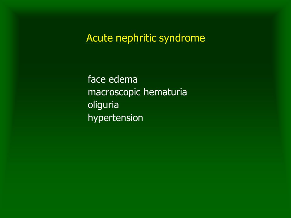 Acute nephritic syndrome face edema macroscopic hematuria oliguria hypertension