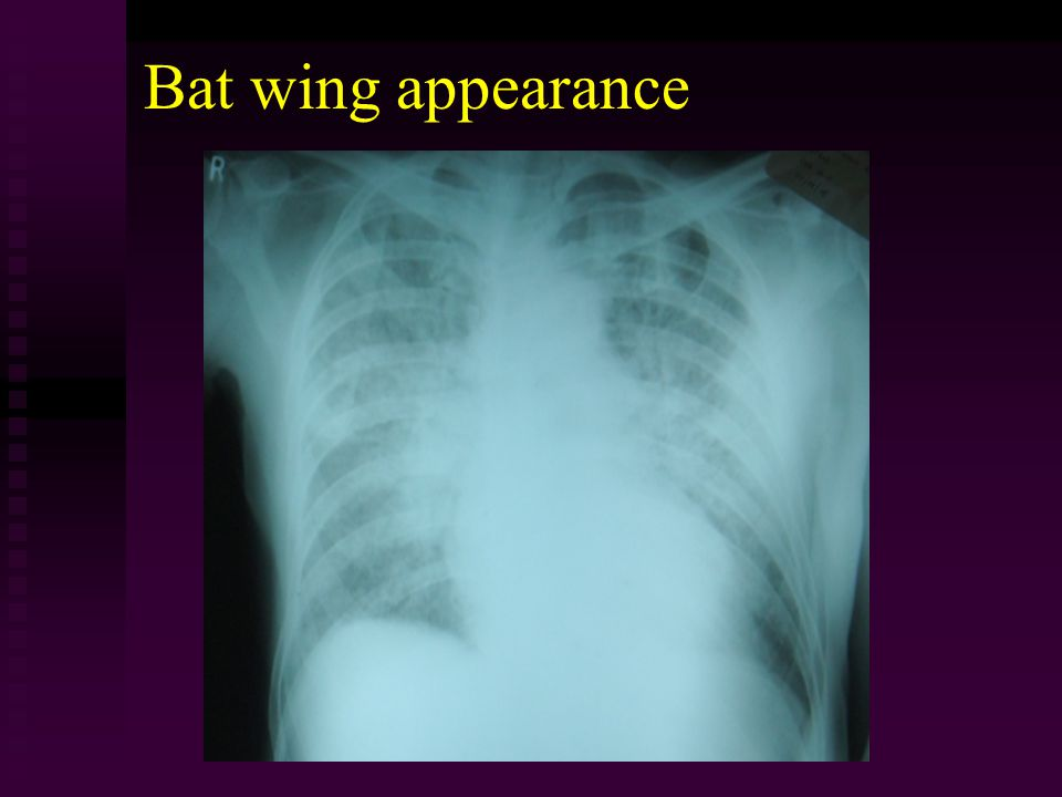 Bat wing appearance