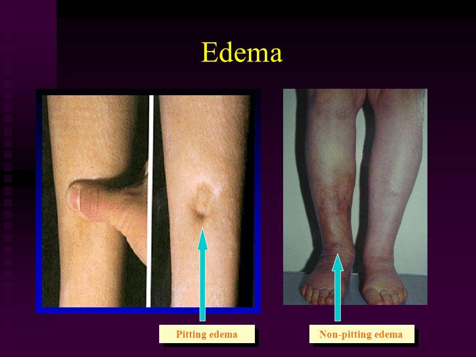 Edema Pitting edema Non-pitting edema