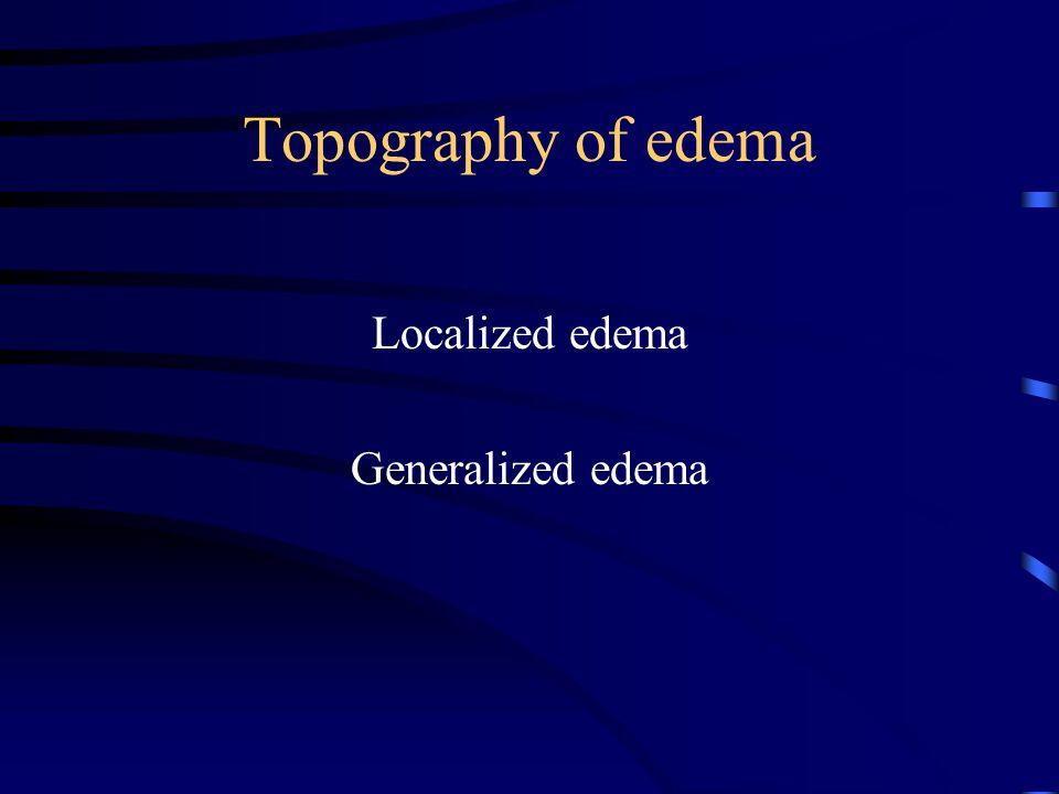 Topography of edema Localized edema Generalized edema