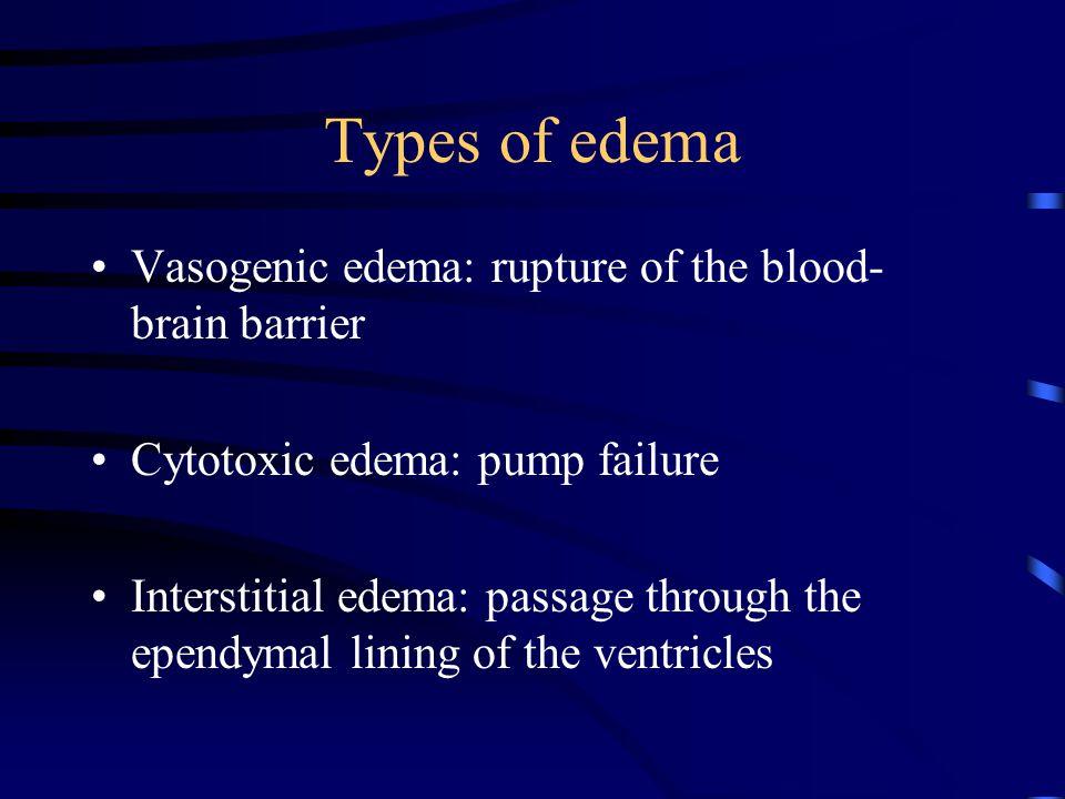 Types of edema Vasogenic edema: rupture of the blood- brain barrier Cytotoxic edema: pump failure Interstitial edema: passage through the ependymal li