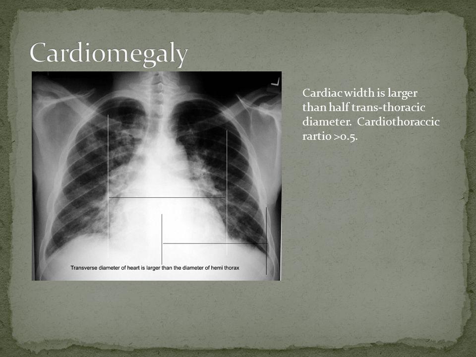Cardiac width is larger than half trans-thoracic diameter. Cardiothoraccic rartio >0.5.