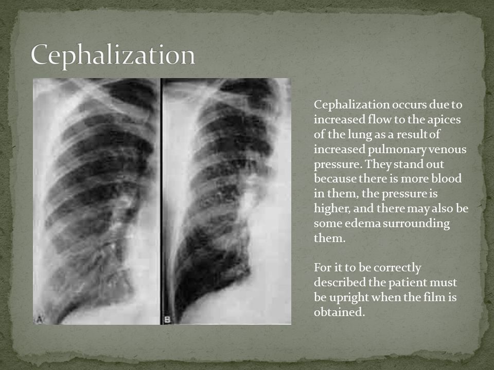 Cephalization occurs due to increased flow to the apices of the lung as a result of increased pulmonary venous pressure.