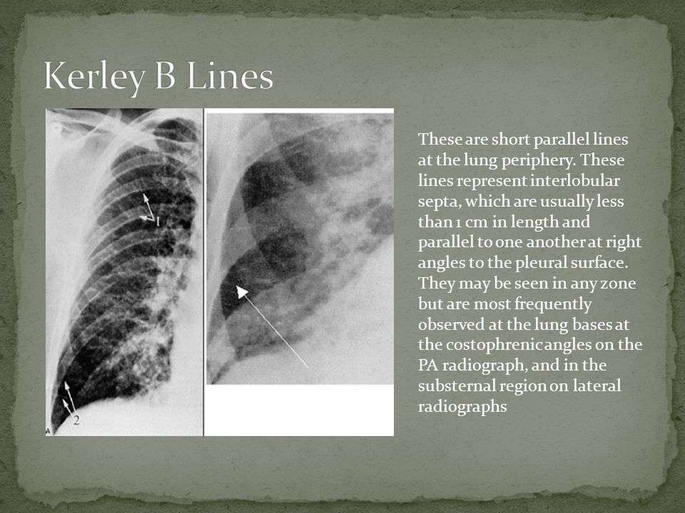 These are short parallel lines at the lung periphery.