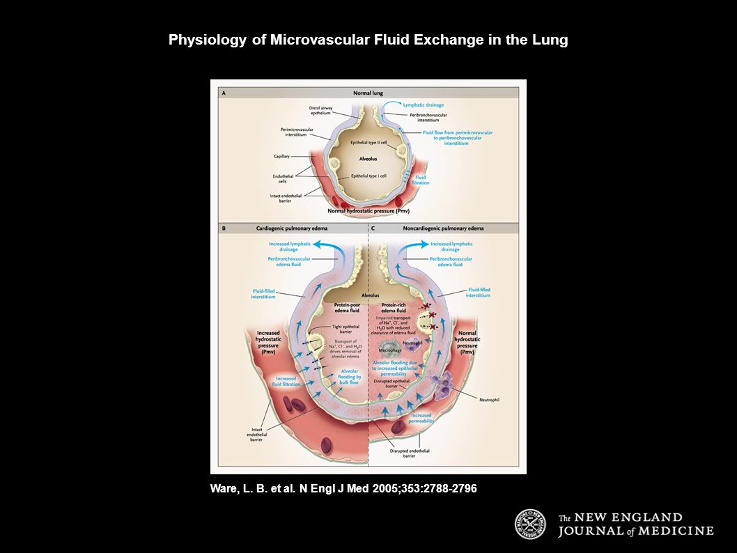 Ware, L. B. et al. N Engl J Med 2005;353:2788-2796 Physiology of Microvascular Fluid Exchange in the Lung
