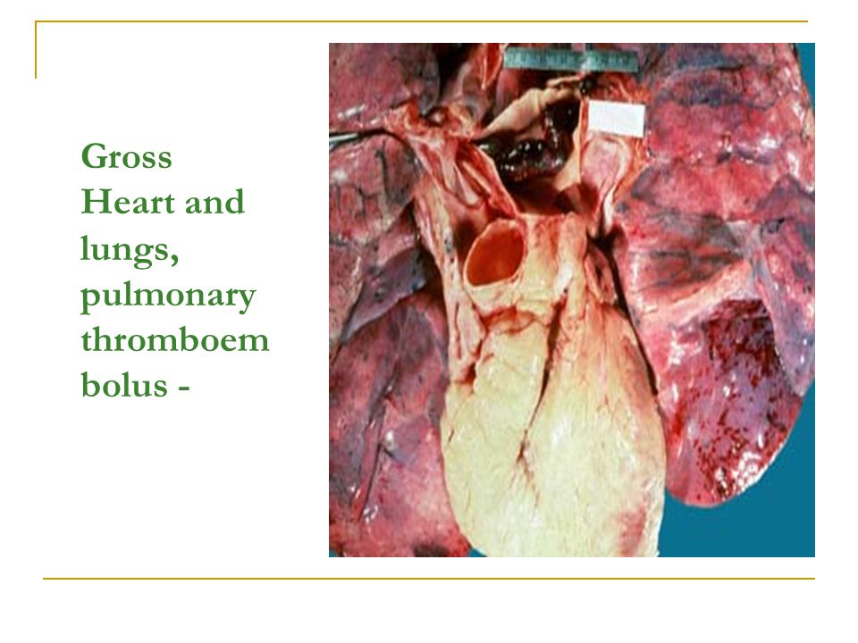 Gross Heart and lungs, pulmonary thromboem bolus -