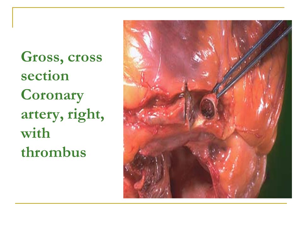 Gross, cross section Coronary artery, right, with thrombus