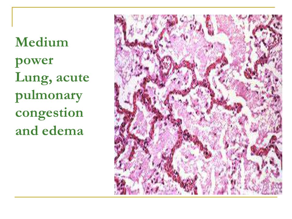 Medium power Lung, acute pulmonary congestion and edema