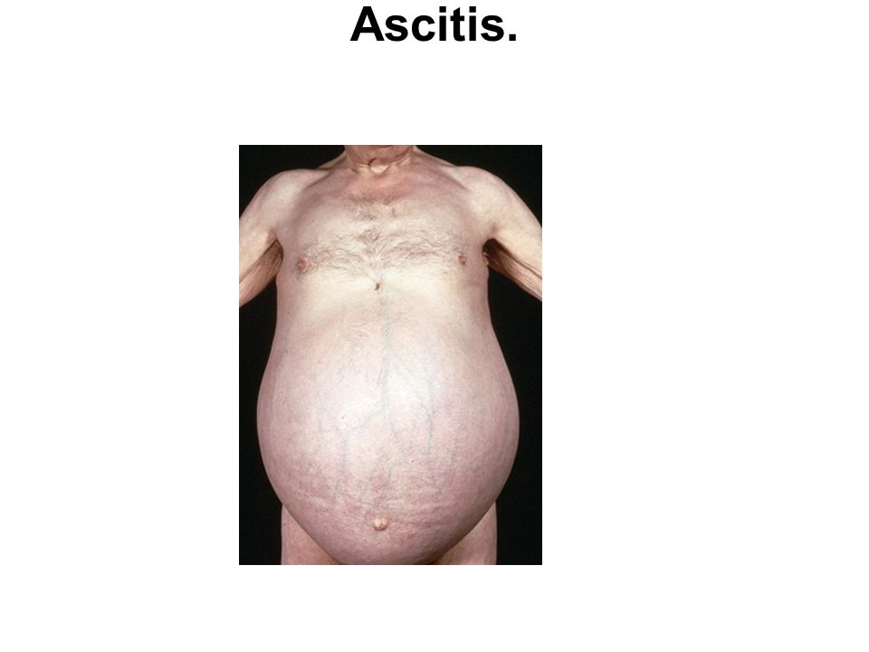 Ascitis.