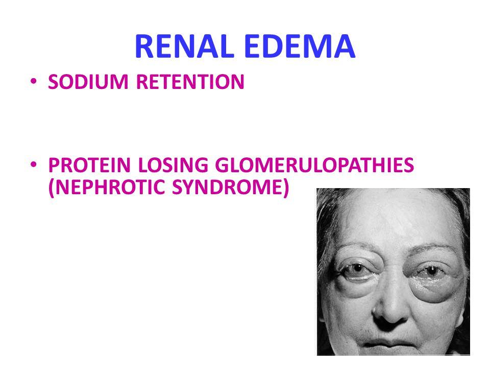 RENAL EDEMA SODIUM RETENTION PROTEIN LOSING GLOMERULOPATHIES (NEPHROTIC SYNDROME)