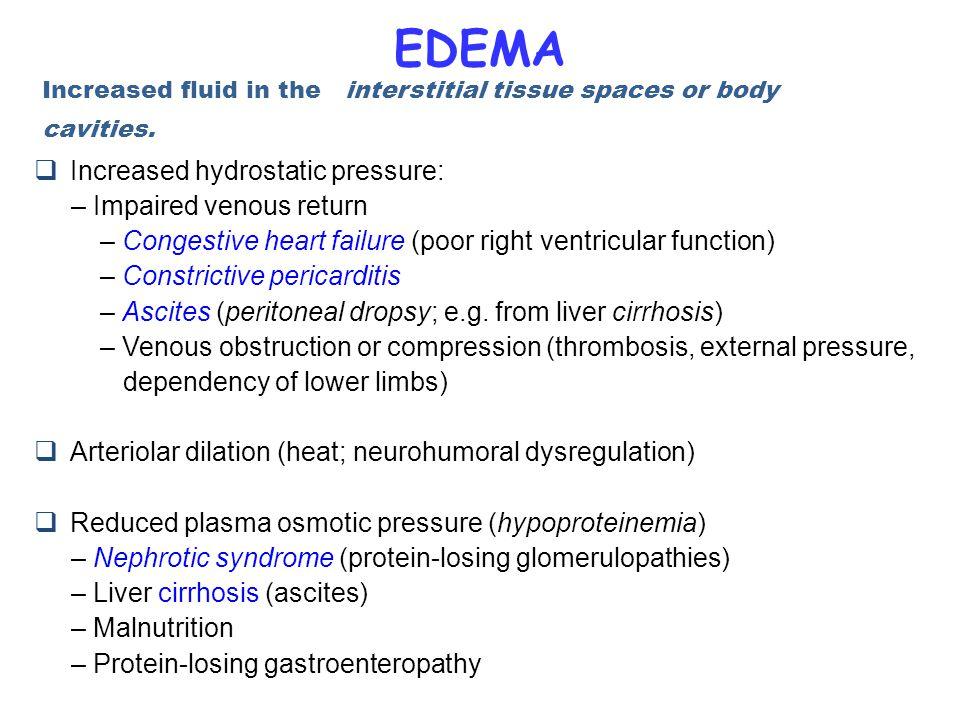 EDEMA  Increased hydrostatic pressure: – Impaired venous return – Congestive heart failure (poor right ventricular function) – Constrictive pericardi
