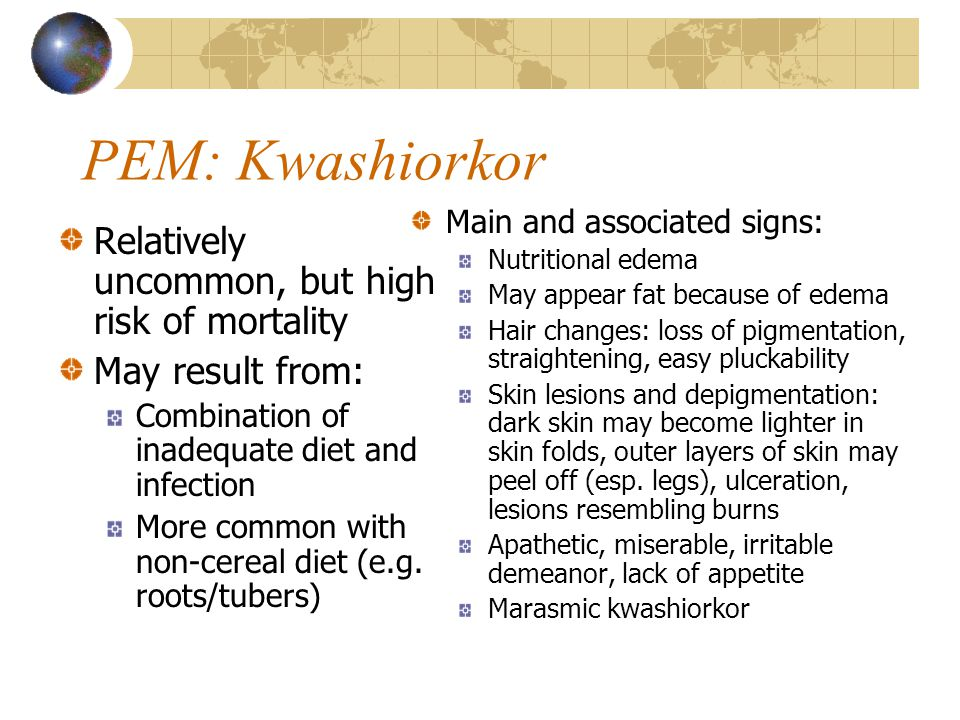 PEM: Kwashiorkor Relatively uncommon, but high risk of mortality May result from: Combination of inadequate diet and infection More common with non-ce