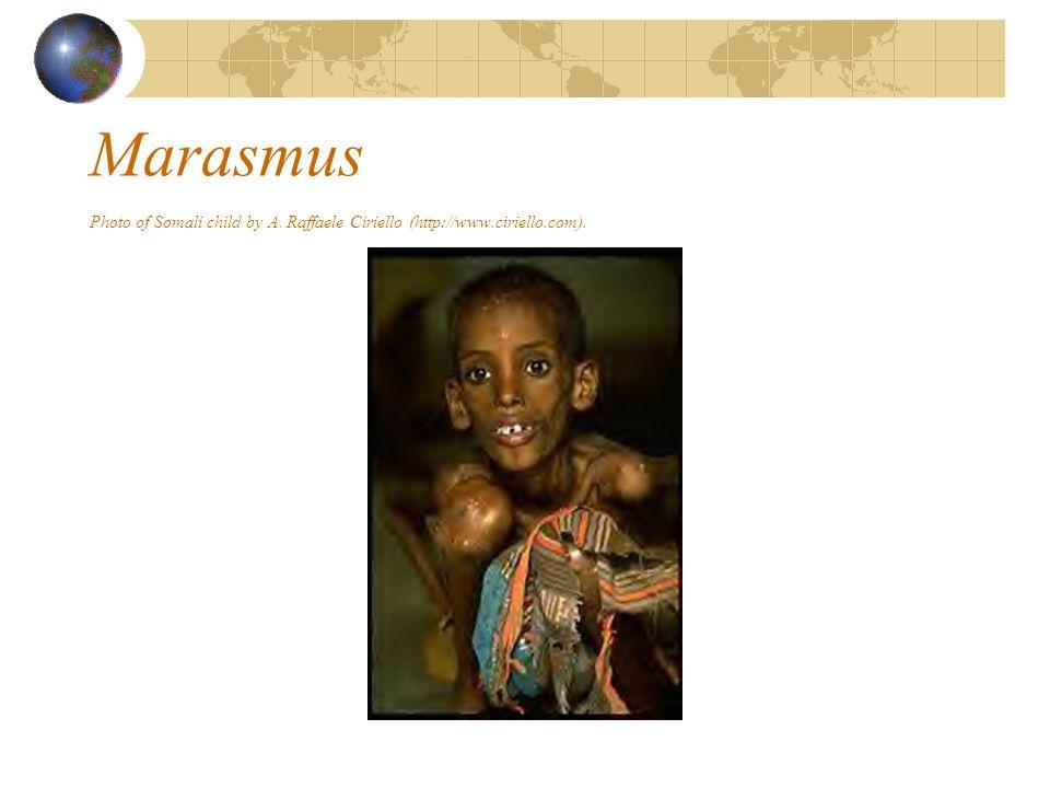 Marasmus Photo of Somali child by A. Raffaele Ciriello (http://www.ciriello.com).