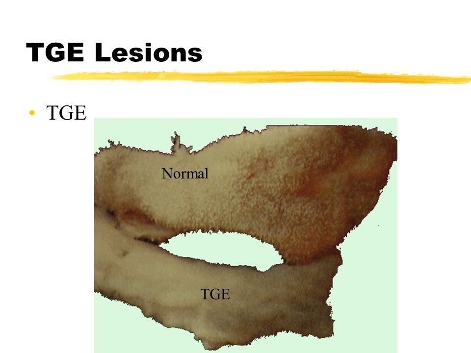 TGE Lesions Normal TGE
