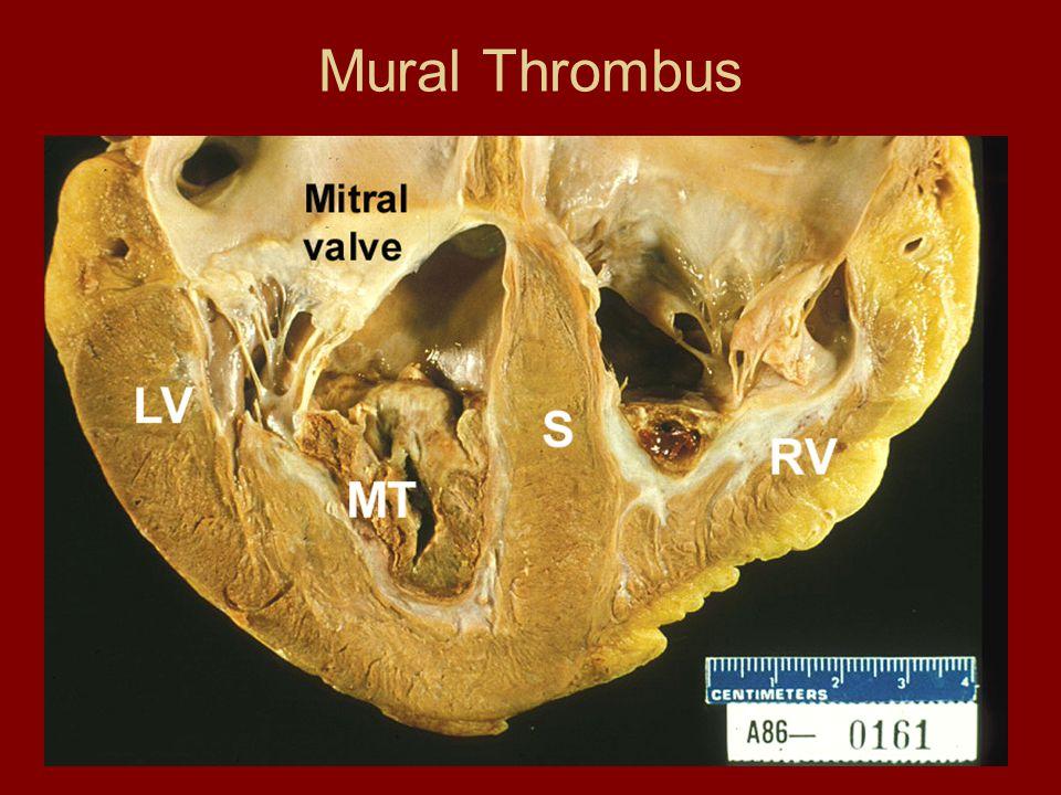 Mural Thrombus
