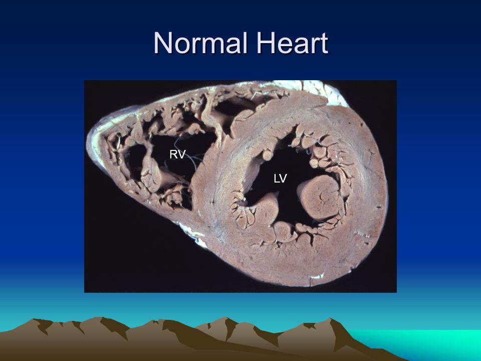 Normal Heart LV RV