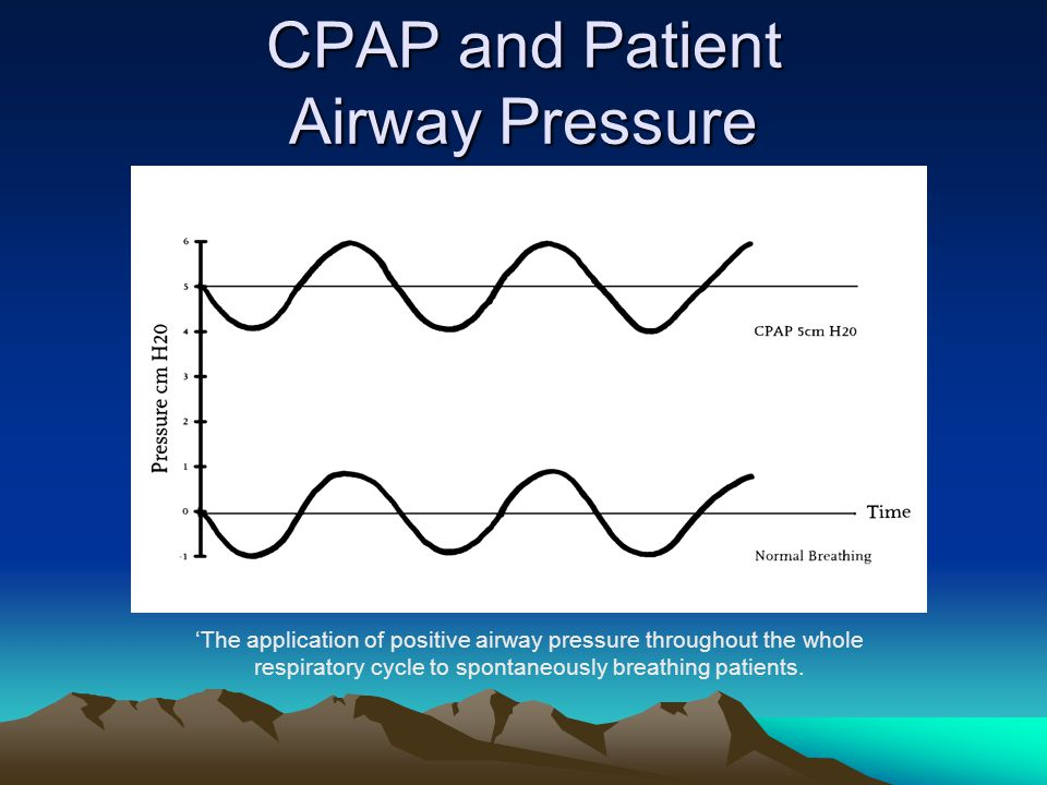 CPAP and Patient Airway Pressure 'The application of positive airway pressure throughout the whole respiratory cycle to spontaneously breathing patien