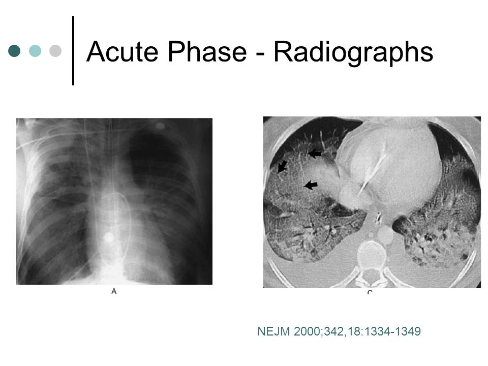 Acute Phase - Radiographs NEJM 2000;342,18:1334-1349