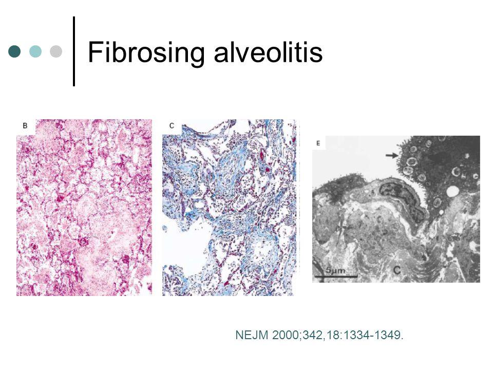Fibrosing alveolitis NEJM 2000;342,18:1334-1349.