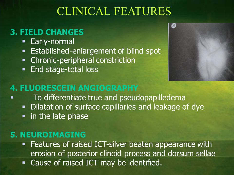 CLINICAL FEATURES 3. FIELD CHANGES  Early-normal  Established-enlargement of blind spot  Chronic-peripheral constriction  End stage-total loss 4.