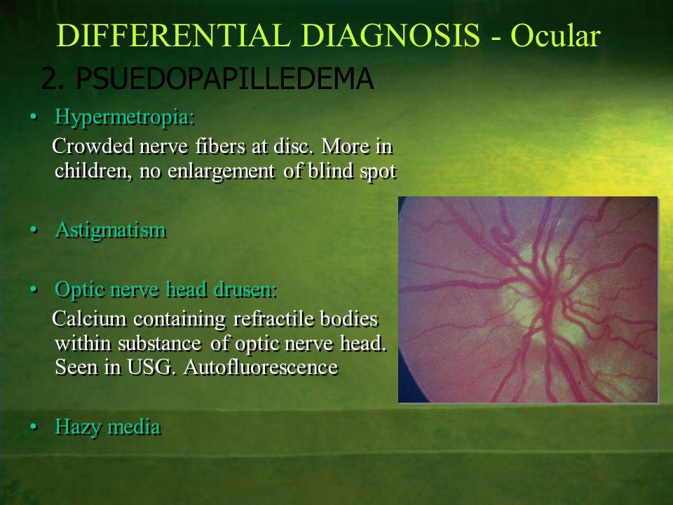 DIFFERENTIAL DIAGNOSIS - Ocular 2. PSUEDOPAPILLEDEMA Hypermetropia: Crowded nerve fibers at disc. More in children, no enlargement of blind spot Astig