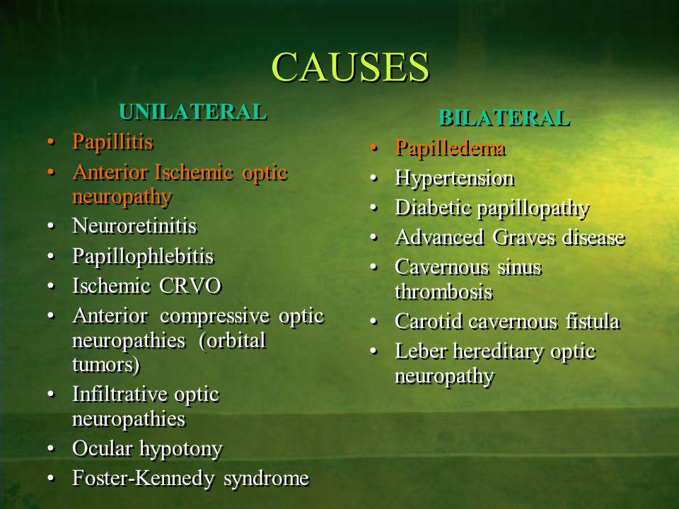 CAUSES UNILATERAL Papillitis Anterior Ischemic optic neuropathy Neuroretinitis Papillophlebitis Ischemic CRVO Anterior compressive optic neuropathies