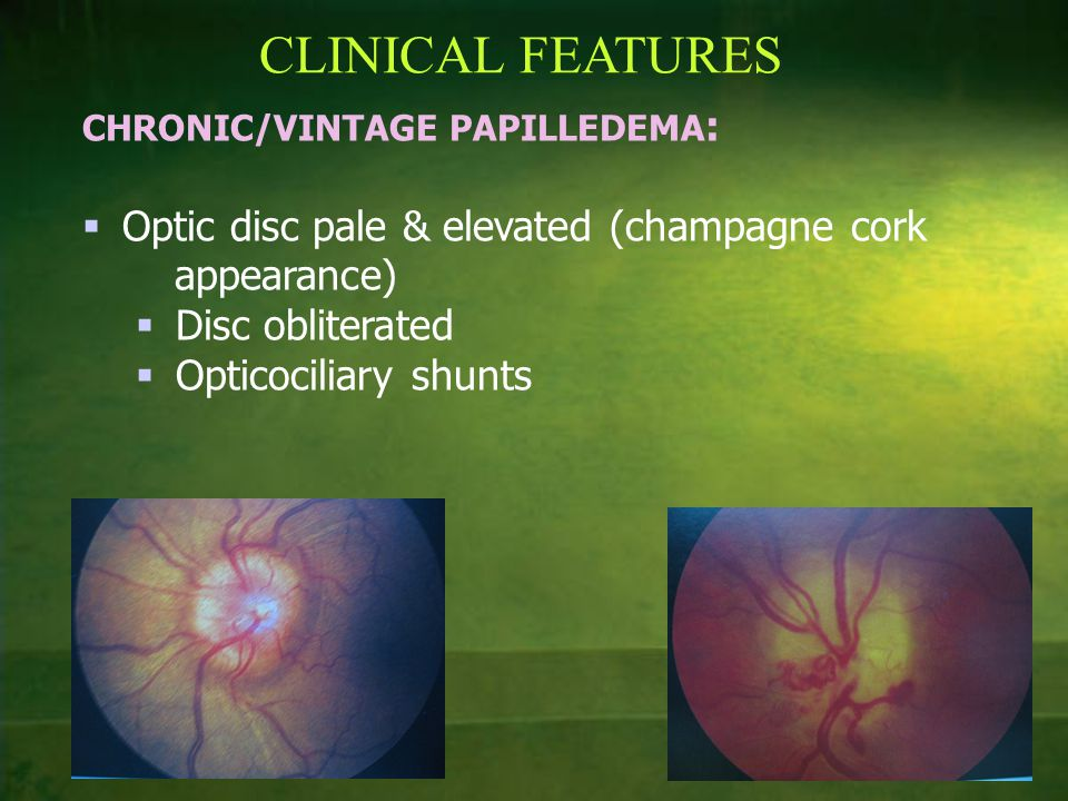 CLINICAL FEATURES CHRONIC/VINTAGE PAPILLEDEMA :  Optic disc pale & elevated (champagne cork appearance)  Disc obliterated  Opticociliary shunts