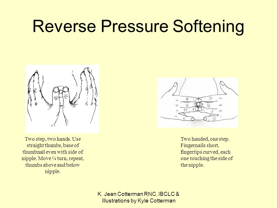 K. Jean Cotterman RNC, IBCLC & Illustrations by Kyle Cotterman Reverse Pressure Softening Two step, two hands. Use straight thumbs, base of thumbnail