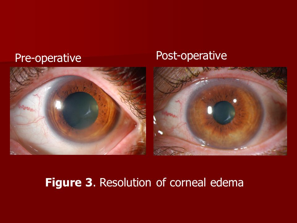 Figure 3. Resolution of corneal edema Pre-operative Post-operative