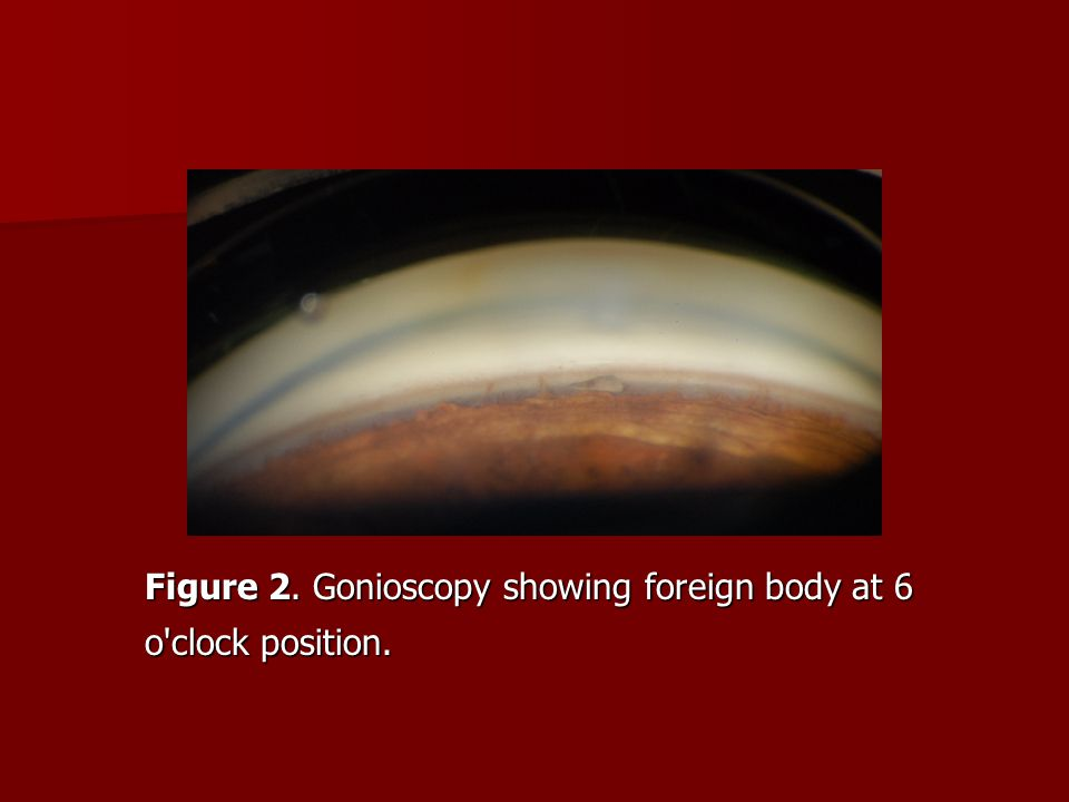 Figure 2. Gonioscopy showing foreign body at 6 o'clock position.