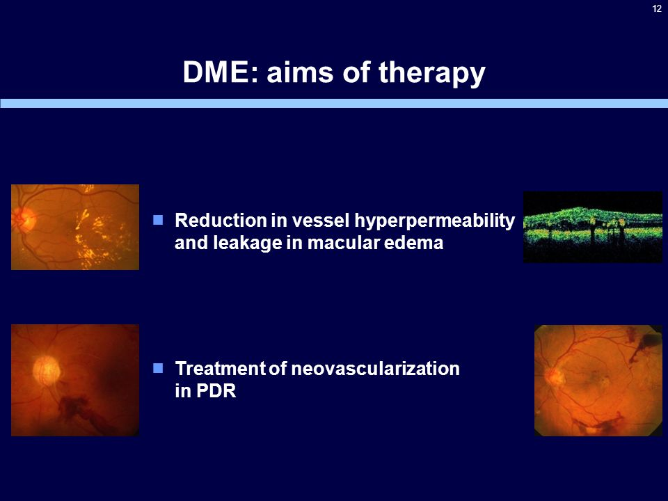 12  Reduction in vessel hyperpermeability and leakage in macular edema DME: aims of therapy  Treatment of neovascularization in PDR
