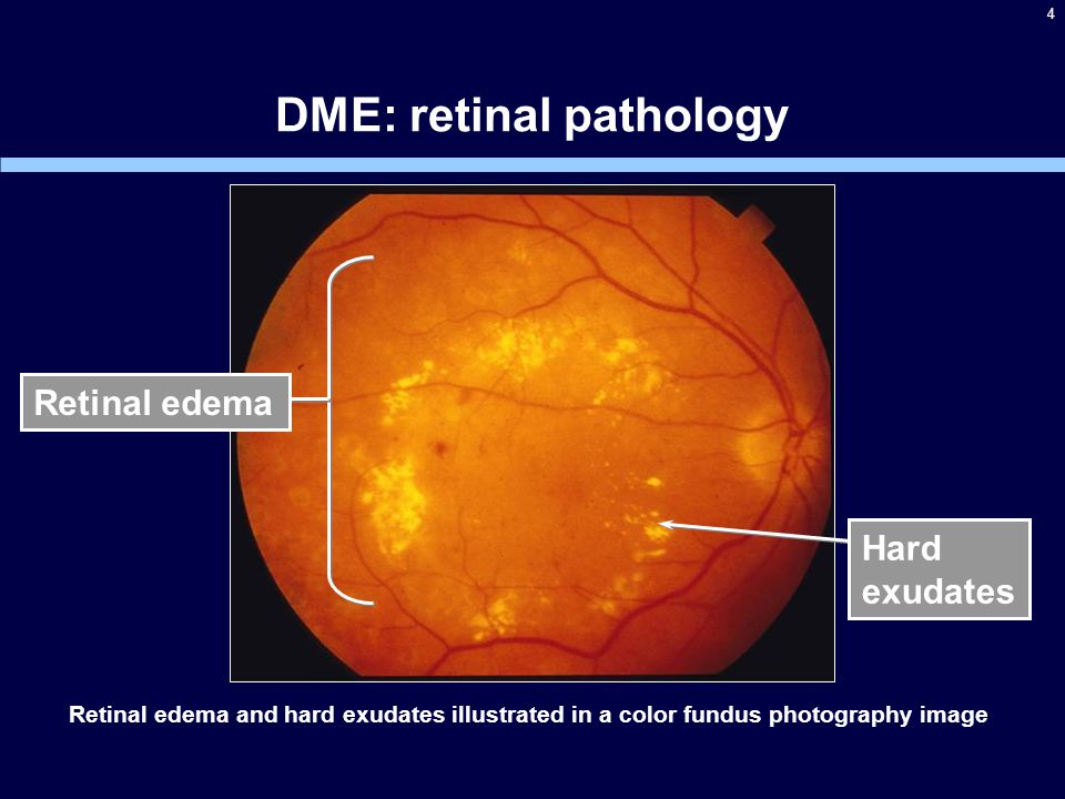 4 DME: retinal pathology Retinal edema Hard exudates Retinal edema and hard exudates illustrated in a color fundus photography image